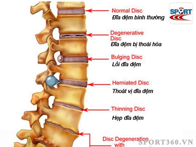 Đi bộ là một trong những phương pháp hỗ trợ điều trị thoát vị đĩa đệm