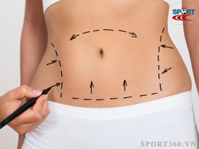 Hút mỡ bụng - Cách giảm mỡ bụng nhanh chóng